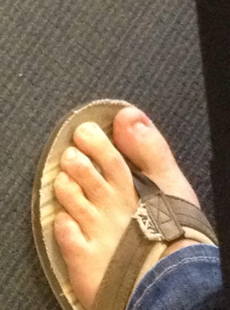 Flip Flops, nyc, no toenail